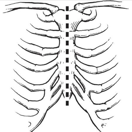 Схема выполнения срединной стернотомии