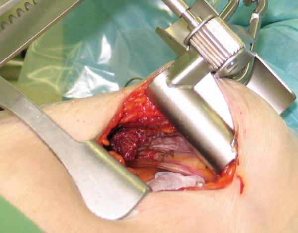 Выделение левой внутренней грудной артерии