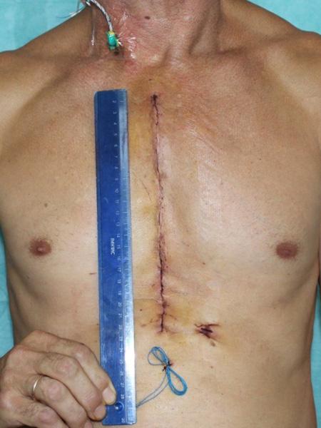 Размер послеоперационной раны после коронарного шунтирования из стернотомии
