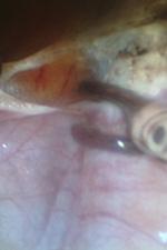 Рак шейки матки, лечение. Коагуляция и пересечение связочного аппарата