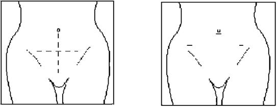 Разрез передней брюшной стенки при обычной и лапароскопической операции