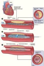 Принципиальная схема установки стента в коронарные сосуды