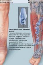 Рис.1 Механизм формирования варикозного расширения вен.